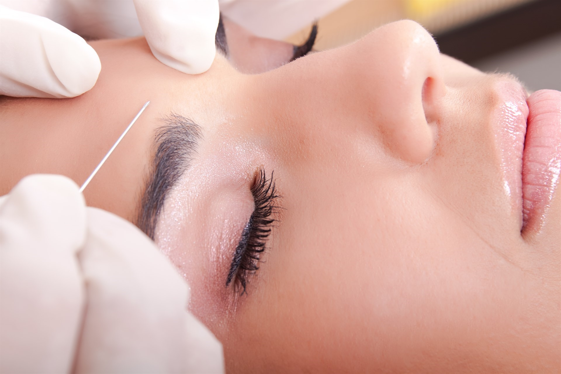 Reducing the appearance of wrinkles with neurotoxins