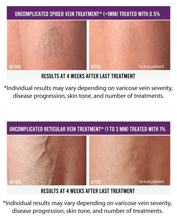 Sclerotherapy: What is it, who's it for, and should I get it?