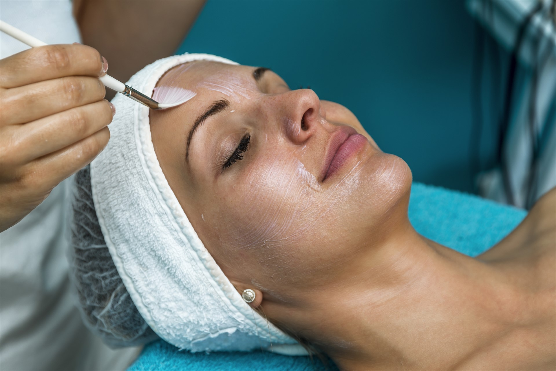 Appealing results start with a chemical peel