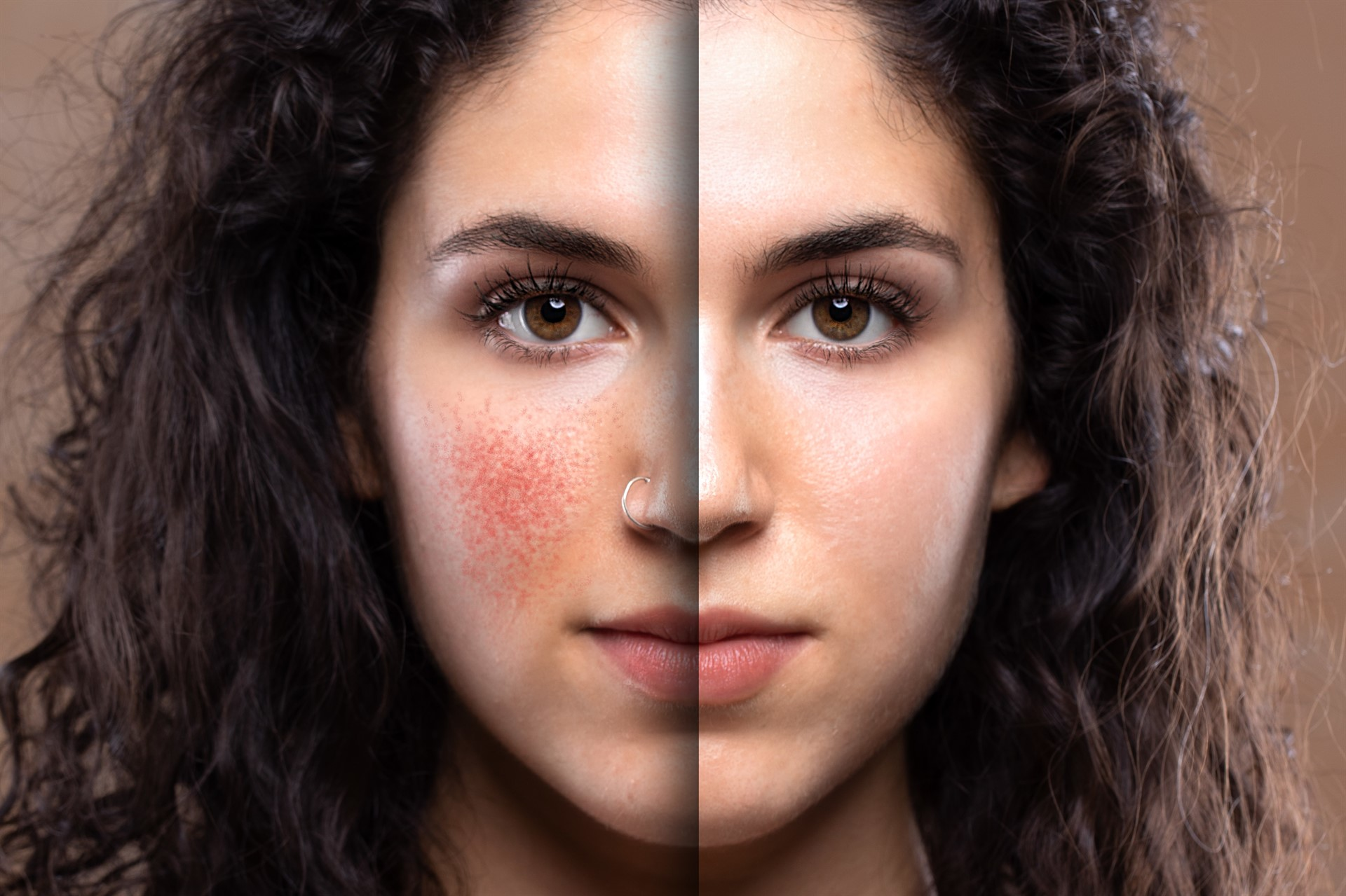 Rosacea—The Good, the Bad, and the Red